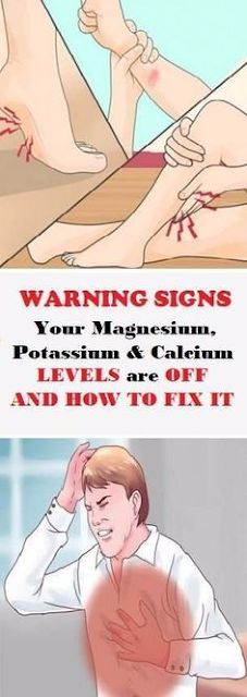Varicose Veins Remedies Warning Signs Your Magnesium, Potassium And Calcium Levels Are Off And How To Fix It! Health Benefits, Health Tips, Health And Wellness, Health Care, Health Fitness, Natural Cures, Natural Healing, Natural Facial, Health Remedies