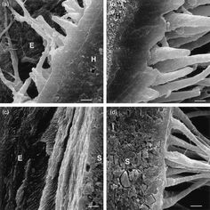 Field-emission SEM, tooth tissue was etched away (bar represents 3 μm). (a) Detail of the adhesive interface between enamel (top left, E) and Optibond/Herculite (bottom right, H), showing the hybrid layer in enamel of about 3 μm thickness (original magnification, 5000×). (b) Detail of the adhesive interface between Optibond/Herculite (left, H) and dentin (right), showing the hybrid layer in dentin of about 3 μm thickness (original magnification, 5000×).