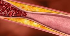 Paying attention to these signs and taking the concerns to a medical health professional right away could even save your life, since clogged arteries are... [read more]