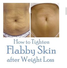 HOW TO TIGHTEN FLABBY SKIN AFTER WEIGHT LOSS!