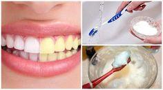 Produse naturale pentru albirea dinților precum bicarbonatul de sodiu
