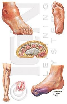 Diabetic Foot Care   It is possible for foot ulcers to develop in relation to diabetes.