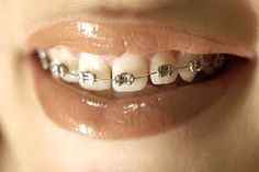 Simple tips to prevent white spots from appearing on your teeth post- This seems totally preventable but depends on how you care for your teeth while wearing braces. Who wants to work so hard for straight teeth to end up with white spots? Braces Food, Braces Tips, Dental Braces, Teeth Braces, Dental Implants, Family Dental Care, Getting Braces, Brace Face, Braces Colors