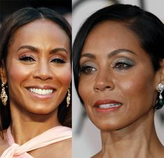 American actress Jada Pinkett Smith has undergone plastic surgery including facelift and cheek implants. Lower Face Lift, Cheek Implants, Face Lift Exercises, Celebrities Before And After, Celebrity Plastic Surgery, Jada Pinkett Smith, Dermal Fillers, Latest Celebrity News, Fett