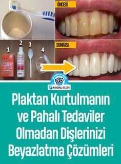 Plaktan Kurtulmanın ve Pahalı Tedaviler Olmadan Dişlerinizi Beyazlatma Çözümleri - Faydalı Bilgin #diş eti, #diş, #sağlık, #plak, #dişler, #yağ, #doğal, #tedavi, #beyazlatma