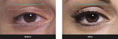 Eyes – Before/After – Krisztina Balogh - Perm Hair Styles Tatoo Eyeliner, Eyeliner Makeup, Different Types Of Curls, Permanent Eyeliner, Eyelash Enhancer, Perfect Eyeliner, Cosmetic Tattoo, Air Dry Hair, Microblading Eyebrows