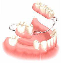 Dental Implants and Conventional Teeth Replacement Technology #Dental_Implants http://www.malodentalimplants.com/