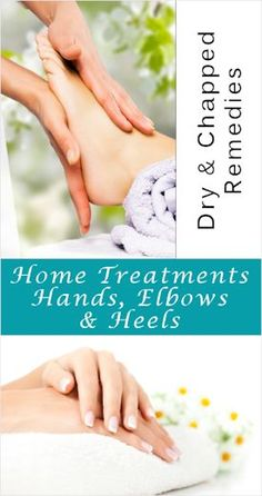 Remedies for Dry & Chapped Hands, Elbows & Heels.