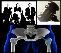 Suffering from pain because of an unwanted failure odf Hip Replacement Surgery?. Hire and talk with a Lawyer.