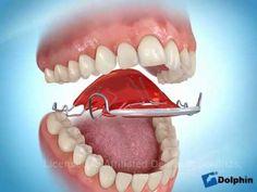 Hawley Spring Retainer - for minor teeth straightening