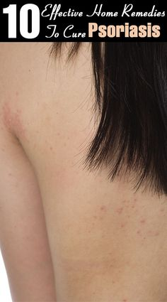10 Effective Home Remedies To Cure Psoriasis on Health Remedies Tips 5025 Scalp Psoriasis Treatment, What Is Psoriasis, Psoriasis Skin, Plaque Psoriasis, Psoriasis Remedies, Snoring Remedies, Home Remedies, Health
