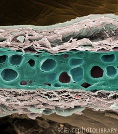 Elastic cartilage from a pinna (outer ear). Elastic cartilage, which maintains the shape of the pinna, contains fibers of the protein elastin Microscopic Photography, Macro Photography, Science Pics, Science Humor, Histology Slides, Natural Structures, Organic Structure, Scanning Electron Microscope, Cells And Tissues