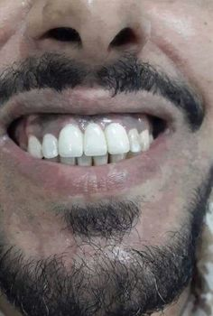 Dentaltown - A diastema is a gap between a person's two upper front teeth. How do you like the way this diastema was closed?