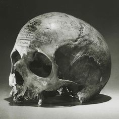 Here's something a little macabre to cure the post-Halloween blues: The skull of Alexander Pearce (1790-1825) Pearce was an Irish convict in Tasmania who escaped several times from prison during a seven-year sentence for various offenses. While on the loose, Pearce would eat his fellow escapees and confess to the cannibalism when he was caught. His claims were doubted, until he was caught after the final escape with body parts in his pockets. Just before he was hanged, Pearce was reported…
