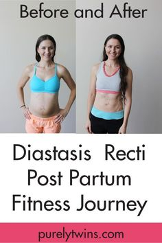 """Before and after post partum fitness journey to close the separation between your abdominal muscles will constantly cause the """"pooch"""". Healing your """"mummy tummy""""  Diastasis Recti: how to heal from having kids and get your abs back together with the right exercises, lifestyle habits and mindset. via @purelytwins"""
