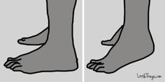 Bunion Surgery Can Be Expensive And Painful, But These 7 Exercises Could Help!