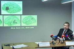 Slovenskí neurochirurgovia objavili novú metódu operácie nádorov