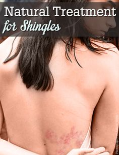 This is an excellent natural treatment for shingles! (As opposed to antibiotics or antivirals, pain meds and steroids)