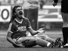 """Ewald Lienen (Arminia Bielefeld) am 14. August 1981, nachdem ihn """"Schlitzer"""" Norbert Siegmann (Werder Bremen) bis zu 23 nötig gewordenen Stichen bearbeitet hatte."""