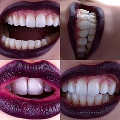 279 отметок «Нравится», 27 комментариев — Renato Ferreira (@renato_ferreira_orthos) в Instagram: «Vale a pena sorrir! ☺ #orthosodontologia #joinville #dentistaemjoinville #dentalphotographygroup…»