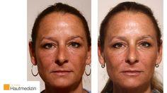 Hier zeigen wir eine vorher-nachher Dokumentation einer Gesichtsbehandlung mit Hyalurongel. Durch die Behandlung wirkt die Augenregion frischer und durch eine dezente Lippen-Behandlung entsteht ein attraktives Aussehen.