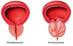 Fizioterápiás prostatitis Kezdőlapok)