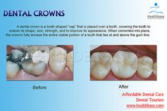 Plz like,comment or repin if you like  www.mydentaltourism.com