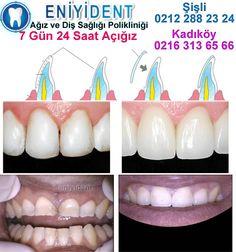 En Etkili Diş Tedavi Yöntemi : Lamine Diş adlı konumuz da sizlere tüm detayları ile lamine diş nasıl yapılır, lamine diş yaptıranların yorumları hakkında bilgiler verdik. Tüm detaylar için , http://www.uzmandisdoktoru.net/en-etkili-dis-tedavi-yontemi-lamine-dis.htm adresine bekleriz.