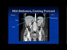 #CT #Abdomen made easy by Dr Sumer Sethi #USMLE #NEETPG #AIIMSPG - YouTube