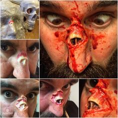 Creating the exposed nasal bone makeup. I created the bone piece with moulding…