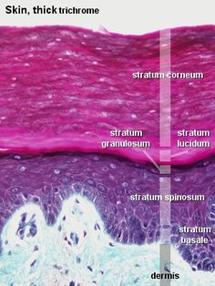 5 Layers of the Epidermis 1 stratum corneum 2 stratum lucidum 3 stratum granulosum 4 stratum spinosum 5 stratum basale Integumentary System Skin Anatomy, Anatomy Study, Anatomy Reference, Nursing Tips, Nursing Notes, Histology Slides, Layers Of The Epidermis, Medicine Student, Medical Pictures