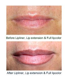 """SofTap permanent  makeup lipliner and full lip color.  The lipliner is placed on the outside edge of the natural vermillion lip line to create a fuller lip and perfect symmetry left and right. After lipliner is completed a larger needle is used to """"fill in""""  the lips with pigment to blend with the lipliner."""
