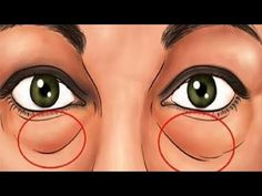 The best natural treatments to remove dark circles and bags under the eyes. Some people are more likely than others to have dark circles or puffiness in their eyes. Crema Facial Natural, Baking Soda Face, Under Eye Bags, Eye Wrinkle, Puffy Eyes, Tips Belleza, Natural Treatments, Natural Remedies, Dark Circles