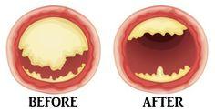 nut cholesterol FI