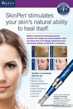 New Signature Spa Service ~ MicroNeedling Therapy with Bellus Medical Skin Pen - Connect Today See the Difference with our Board-Certified Professionals located at 885 Kempsville Road, Suite 309 Norfolk, VA Collagen Fillers, Face Care Routine, Derma Roller, Face Massage, Skin Treatments, Spot Treatment, Skin Cream, Acne Scars