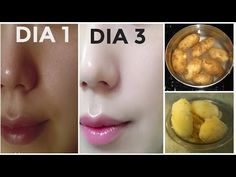 Permanent Skin Whitening Remedy, Get Fair Skin, Glowing Skin and Spotless skin with Boil Potato. This Remedy is very effective for permanent skin whitening, so must watch this video & try this remedy today. Natural Skin Whitening, Whitening Face, Potato For Skin, Skin Lightening Cream, Coconut Oil Hair Mask, Piel Natural, Tips Belleza, Fair Skin, Best Face Products