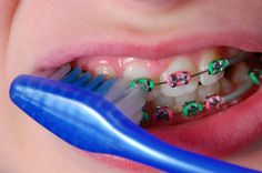 Regular #brushing and #flossing are especially important when #braces are placed to correct crooked or overcrowded #teeth. #Food and plaque can get trapped in the tiny spaces between braces and wires, causing #decay and discoloration.