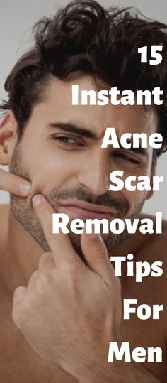 15 Instant Acne Scar Removal Tips For Men To Remember - Acne Treatment Best Acne Scar Removal, Acne Scar Removal Treatment, Beauty Tips For Men, Beauty Hacks For Teens, Beauty Hacks Acne, Types Of Acne, Remove Acne, Acne Remedies, Natural Remedies