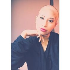This lovely lady who has eyes that literally sparkle. | 27 Stunning Women Who Show That Bald Is Absolutely Beautiful