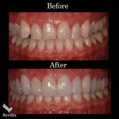 All about laser teeth whitening Teeth Makeover, Smile Makeover, Cosmetic Dentistry Procedures, Dental Procedures, Teeth Whitening, Dental Crown Procedure, Tooth Crown, Beautiful Teeth