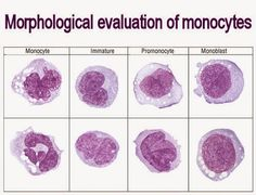 Morphological evaluation of monocytes