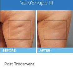 With VelaShape III,shapes and slims the body by reducing cellulite and firming problem areas in as little as 4 treatments. Thanbk you for sharing Elk Grove Medical Spa. How To Treat Eczema, How To Treat Acne, Severe Eczema, Reduce Cellulite, Medical Spa