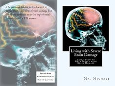 Living with Severe Brain Damage #braininjury #neuroskills