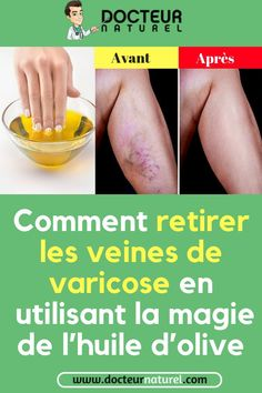 Pin [ax] on Cellulite exercises Pin on Cellulite exercises Causes Of Cellulite, Lose Cellulite, Cellulite Scrub, Cellulite Exercises, Cellulite Cream, Cellulite Remedies, Health Facts, Health And Nutrition, Olives