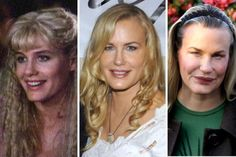 Who is Daryl Fact of Daryl Hannah Plastic Today's looks of Daryl Hannah Who is Daryl Hannah? Daryl Hannah is one of the celebrities who have recently undergone unsuccessful plastic surgery. After viewing Daryl Hannah plastic surgery before and. Bad Plastic Surgeries, Plastic Surgery Gone Wrong, Plastic Surgery Photos, Celebrity Plastic Surgery, Daryl Hannah, Botox Before And After, Celebrities Before And After, Chin Implant, Cheek Implants
