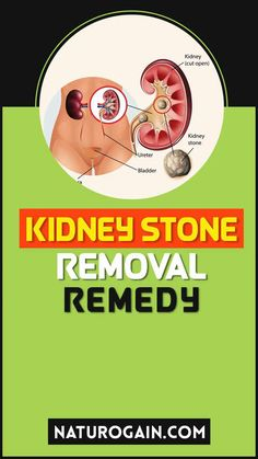 Kid Clear capsules are the No.1 painless treatment for kidney urinary stones and renal calculi at home. You can make use of this remedy with any other supplement. It assures complete safety. #kidneystones #kidneystone #kidneyhealth Improve Kidney Function, Kidney Health, Kidney Stones, Healthy Tips, Natural Remedies, Herbalism, Health Care, Safety