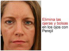Elimina las ojeras y bolsas en los ojos con perejil ~ Manoslindas.com