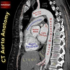 Check out this sagittal view of a CT aorta.  TAKE NOTE OF:  📝We can see one branch of the arch of he aorta - the left subclavian… Radiology Student, Nursing School Notes, Medical School, Cardiac Nursing, Medicine Student, Human Anatomy And Physiology, Medical Anatomy, Medical Imaging, Medical Information