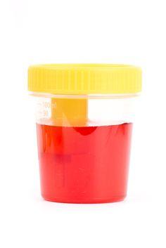 Hematuria es la presencia de sangre en la orina, la cual puede ser visible a simple vista o no, y se llama macroscópica o microscópica respectivamente. En condiciones normales las personas eliminan hasta dos millones de Glóbulos rojos en orina diariamente lo que equivale a la visualización de uno a tres eritrocitos por campo de alta resolución en el sedimento urinario. Un recuento superior a tres por campo se considera hematuria.