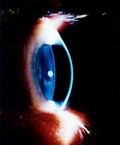 wandrlust: The Human Eye, 1966 — Lennart Nilsson